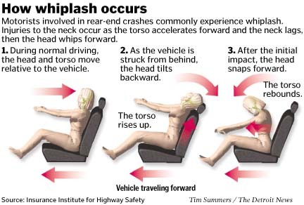 CC whiplash mechanism